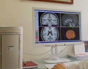 Stimolazione magnetica transcranica per vincere dipendenze e depressione: come funziona?