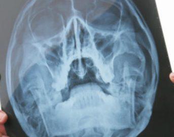 Tumore al cervello: in arrivo nuova tecnica laser che distrugge il cancro