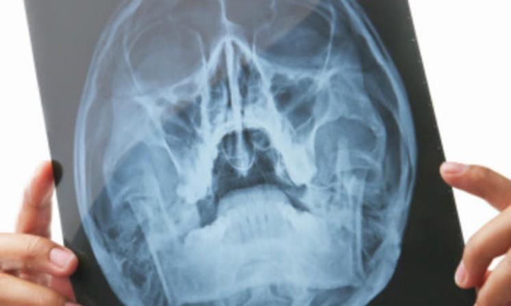 Tumore al cervello, in arrivo tecnica laser in grado di distruggerlo