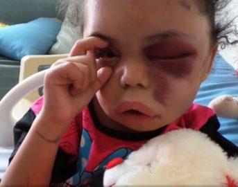 La bambina di 5 anni che ha aperto gli occhi al mondo sulla guerra in Yemen