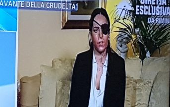 Gessica Notaro sfregiata con l'acido: ex fidanzato condannato a 10 anni di carcere