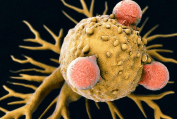 cancro scoperta cellula t