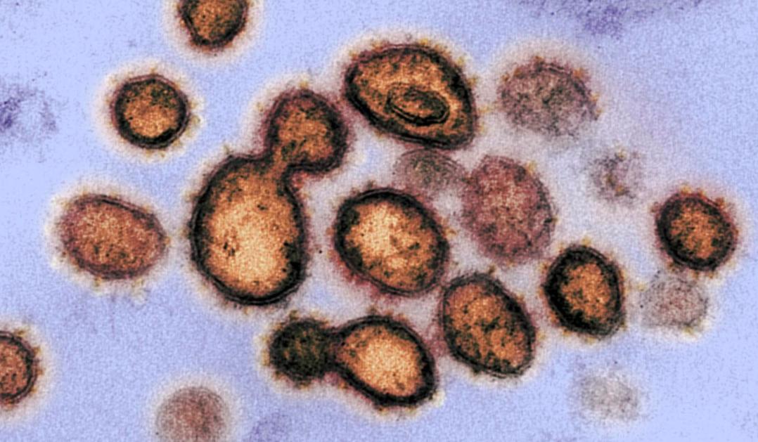 Virus Sars-CoV-2