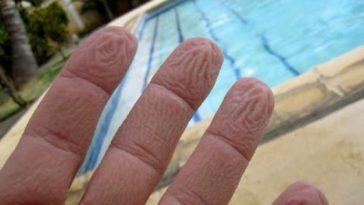 Perché le mani si raggrinziscono in acqua
