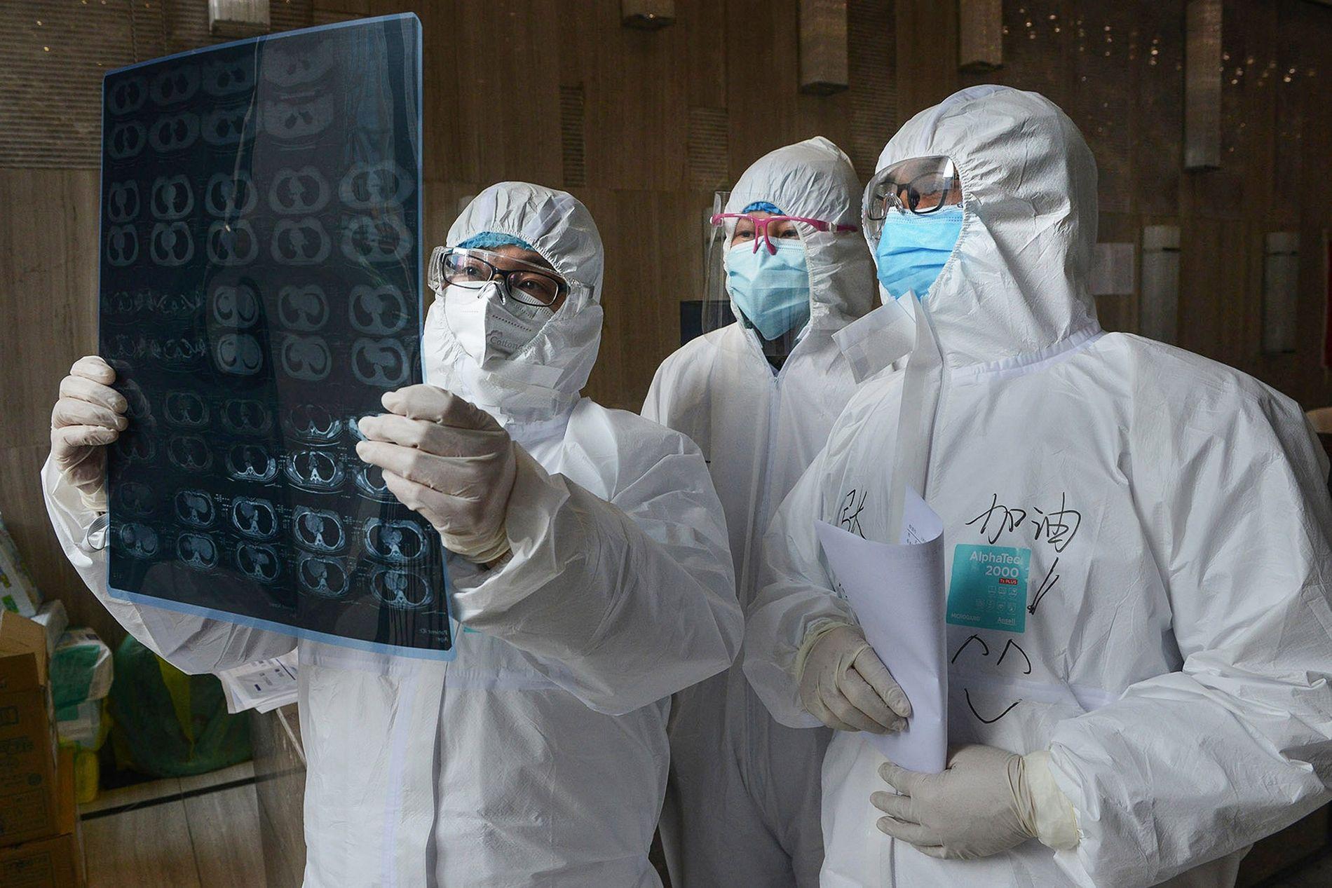 coronavirus midollo