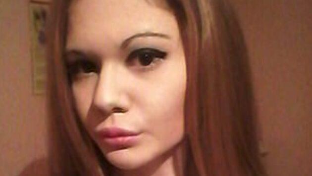 Barbie umana, la donna con le labbra più grandi del mondo: dopo 20 fillers è così [FOTO]